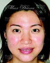 個案4:Mrs Lau 治療中