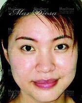個案4:Mrs Lau 治療後