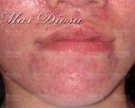 念珠菌引發皮膚症狀 - 例二