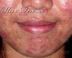 念珠菌引發皮膚症狀 - 例三