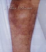濕疹治療中(膝)*