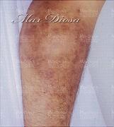 濕疹治療後(膝)*