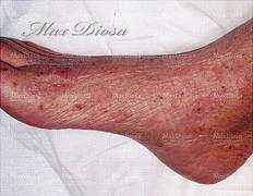 濕疹治療中(腳)*