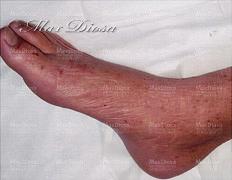 濕疹治療後(腳)*
