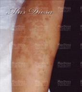 濕疹治療中(手臂)*