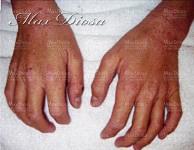 濕疹治療中(手)*
