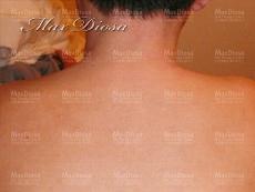 濕疹治療後(背部)*