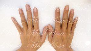 濕疹治療後(手)*