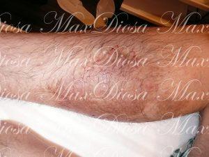 濕疹治療中(腿)*