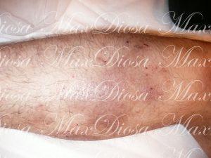 濕疹治療後(腿)*
