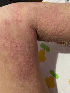 風疹症狀 - 小粉圓頂狀/圈狀